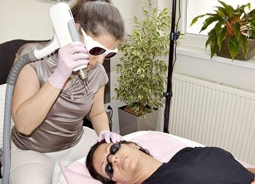 Q-yag Lézeres tetoválás eltávolítás teszt villantás Bolvári sminktetoválás 23